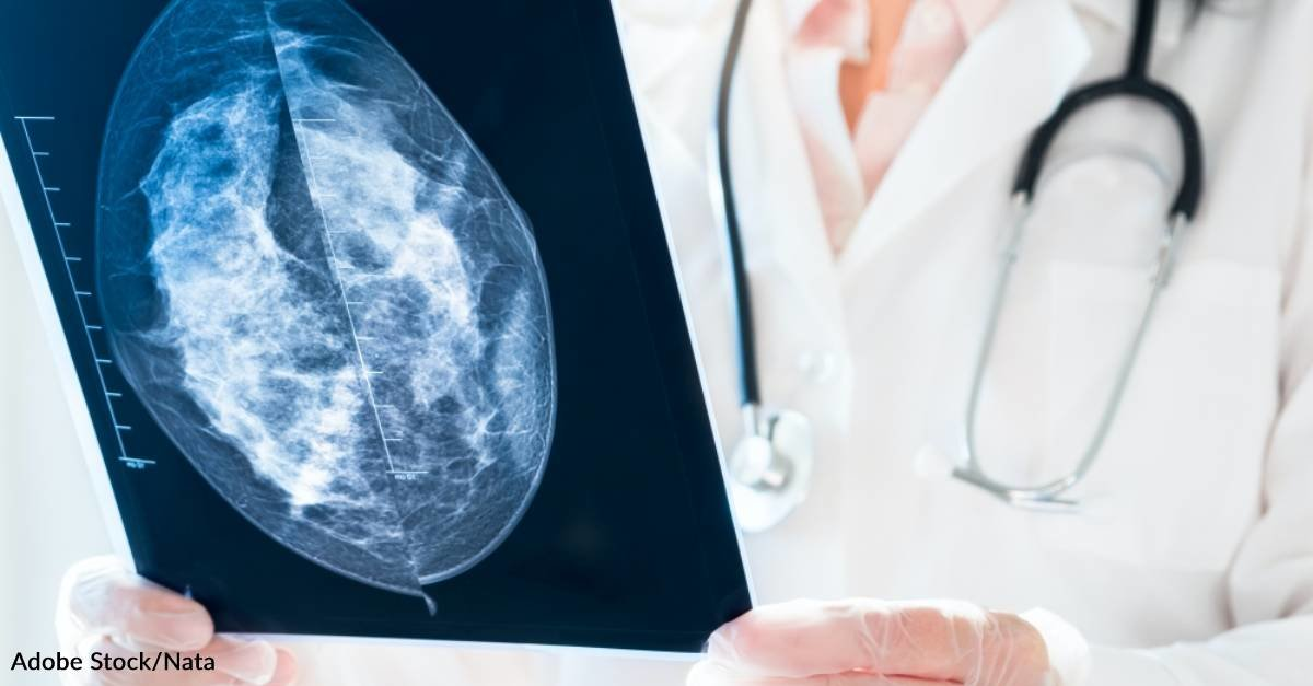 24% of Breast Cancers Diagnosed Between Mammograms Could Have Been Detected Earlier