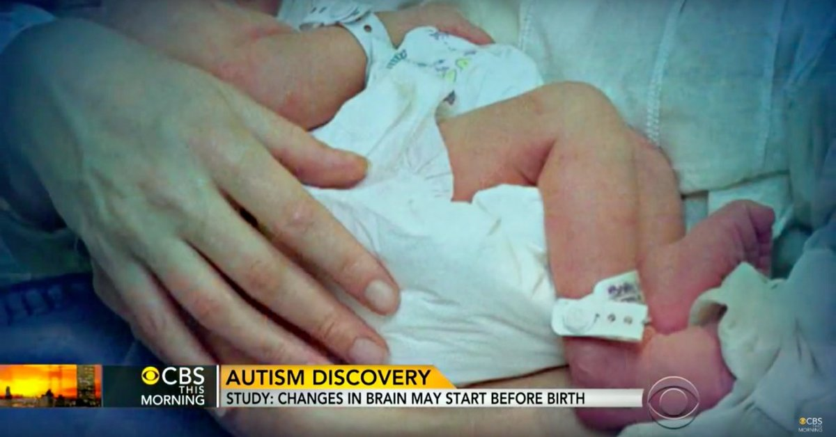 Study Finds That Autism Development Can Be Traced Back to the Second Trimester of Pregnancy